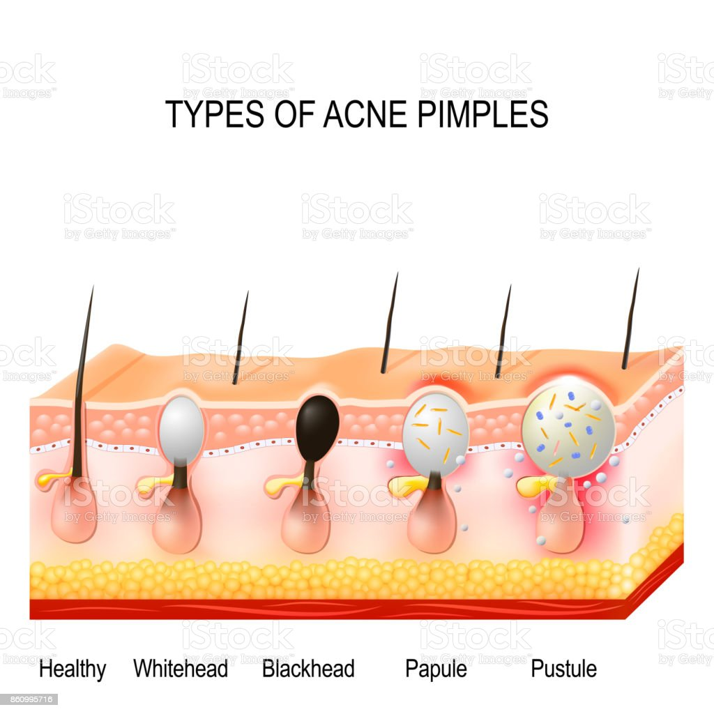 hight resolution of types of acne pimples royalty free types of acne pimples stock vector art amp