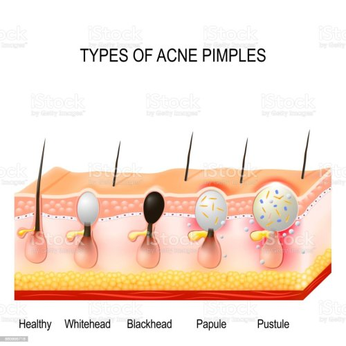 small resolution of types of acne pimples royalty free types of acne pimples stock vector art amp