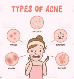 types of acne with woman cartoon illustration vector on pink background beauty concept royalty [ 1024 x 968 Pixel ]