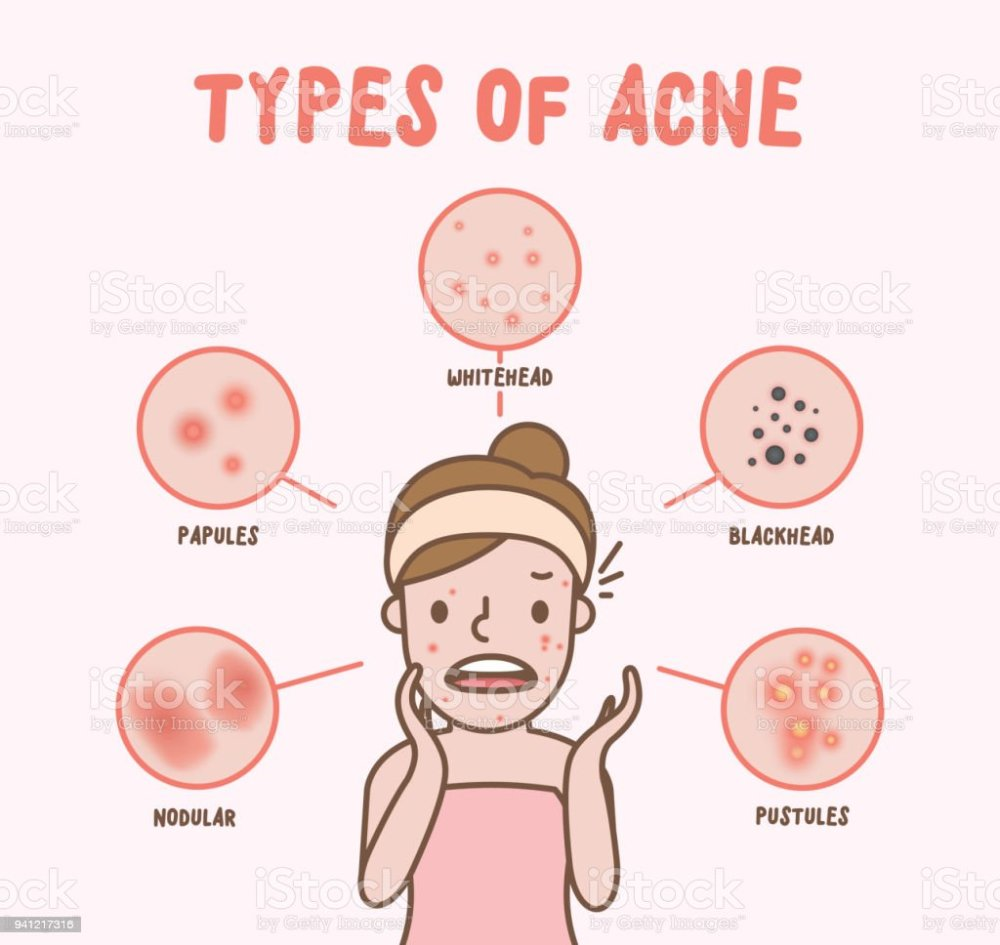 medium resolution of types of acne with woman cartoon illustration vector on pink background beauty concept royalty