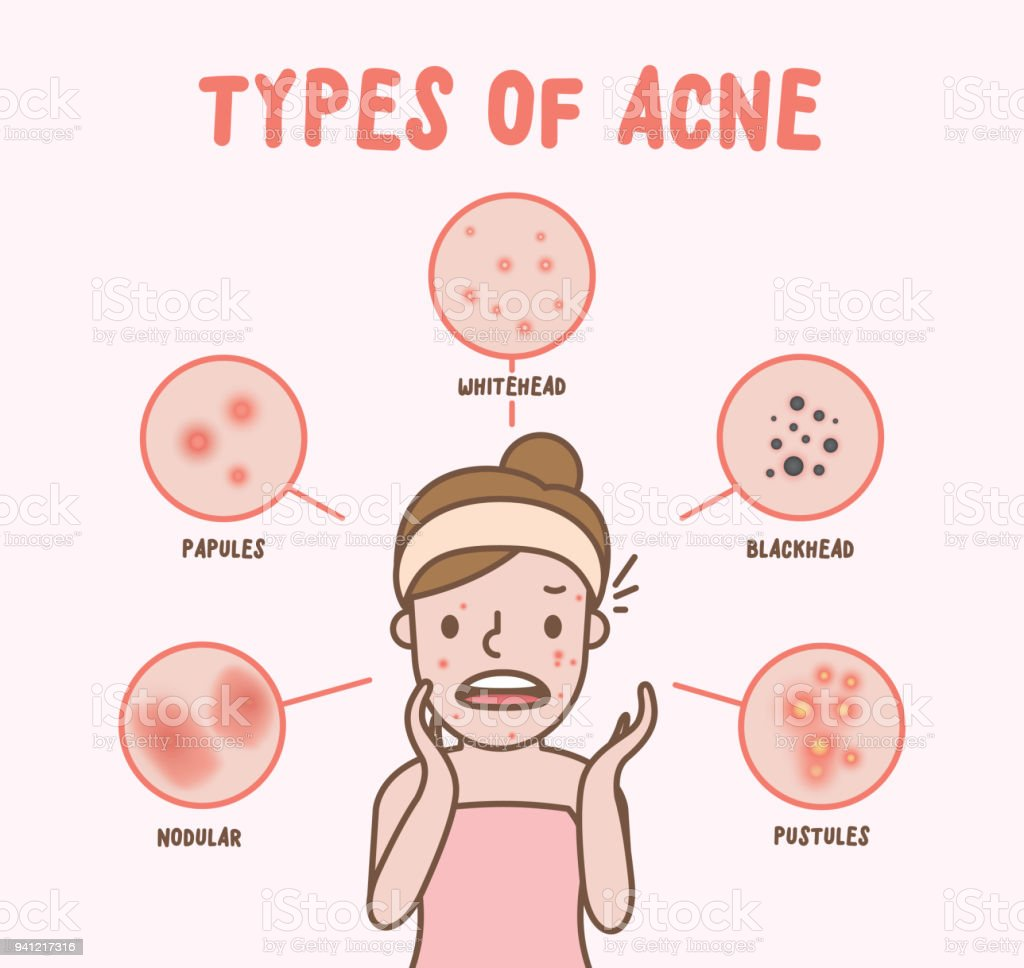 hight resolution of types of acne with woman cartoon illustration vector on pink background beauty concept royalty