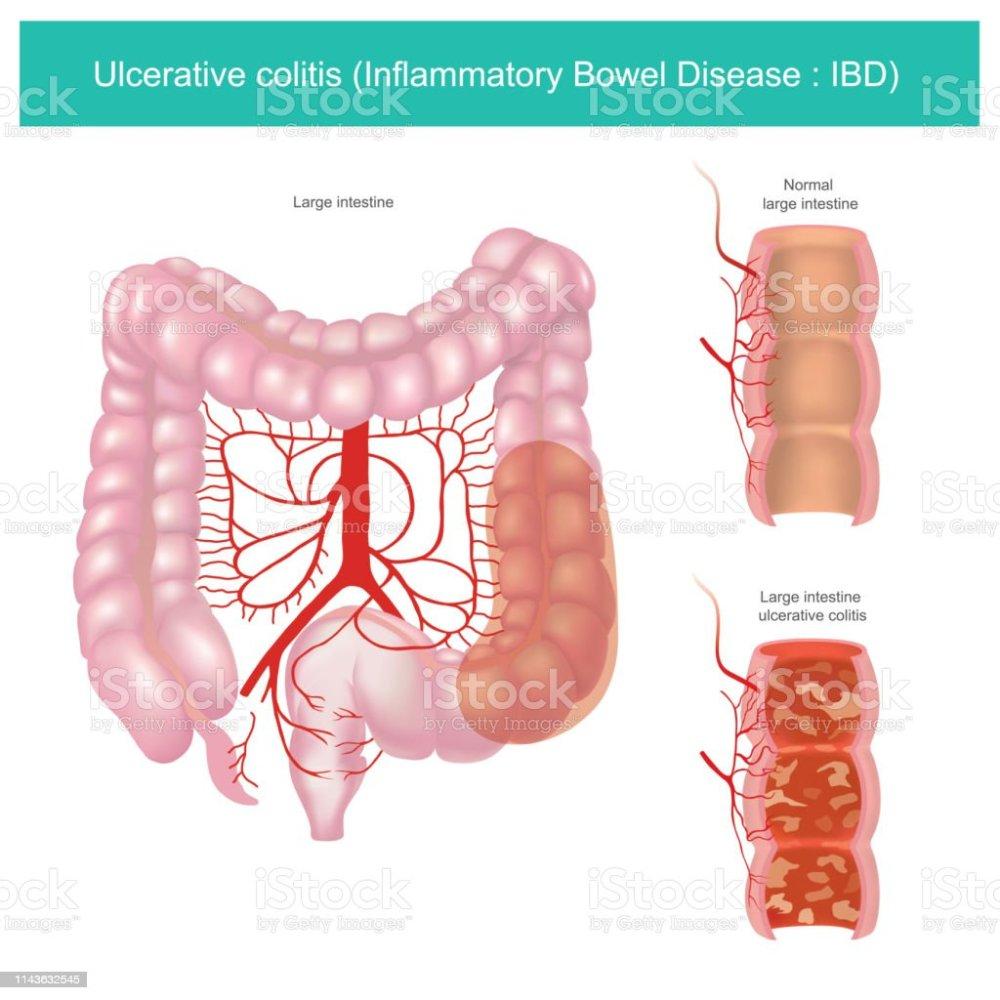 medium resolution of ulcerative colitis illustration