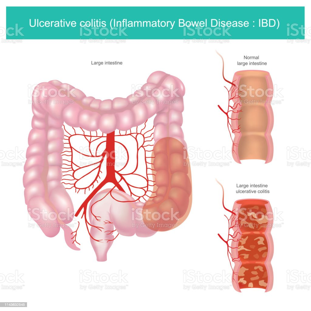 hight resolution of ulcerative colitis illustration