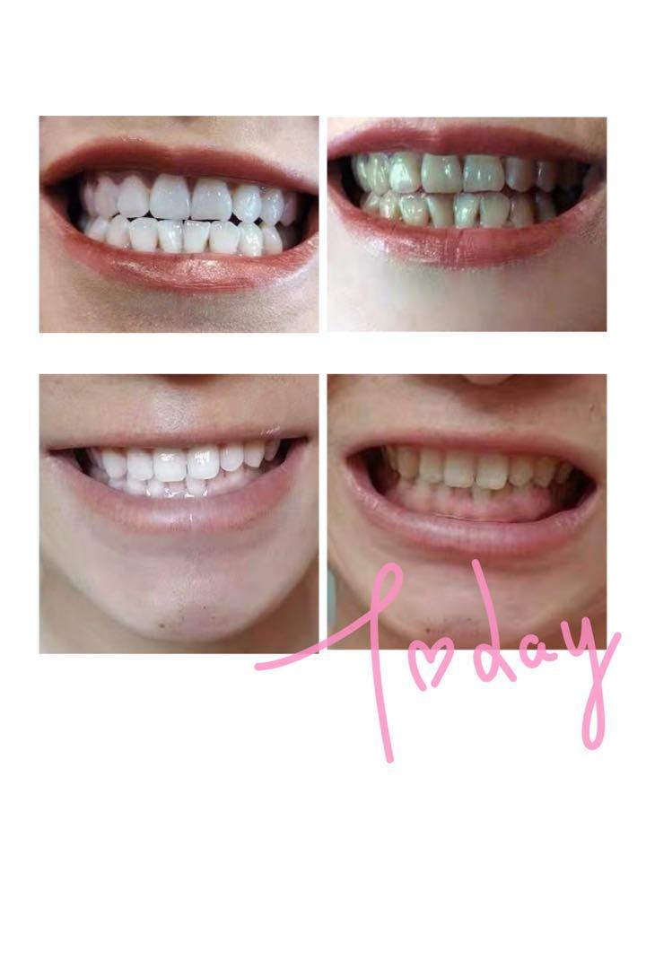 牙齒美白 藍光機, 美容&化妝品, 指甲美容, 香水 & 其他 - Carousell
