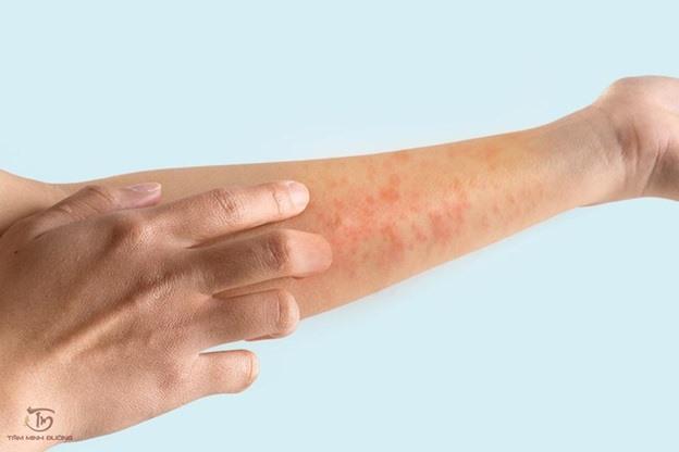 Triệu chứng của bệnh nóng gan ở bệnh nhân
