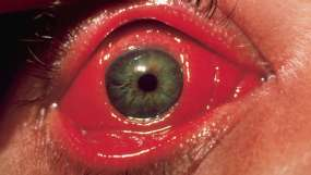 Image result for disease