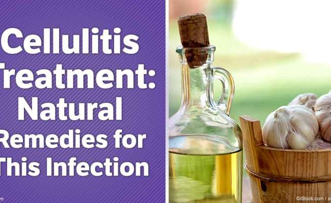 Try These Natural Alternatives For Cellulitis Treatment