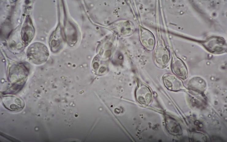 Ciencia Henneguya salminicola
