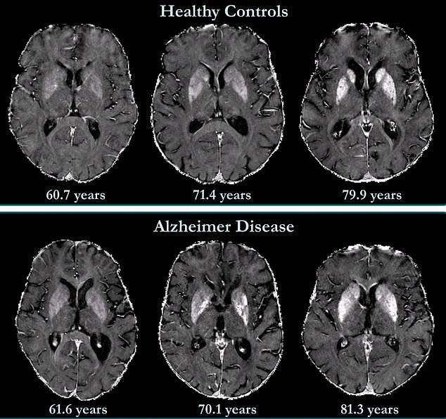 Alzheimer Cerebro