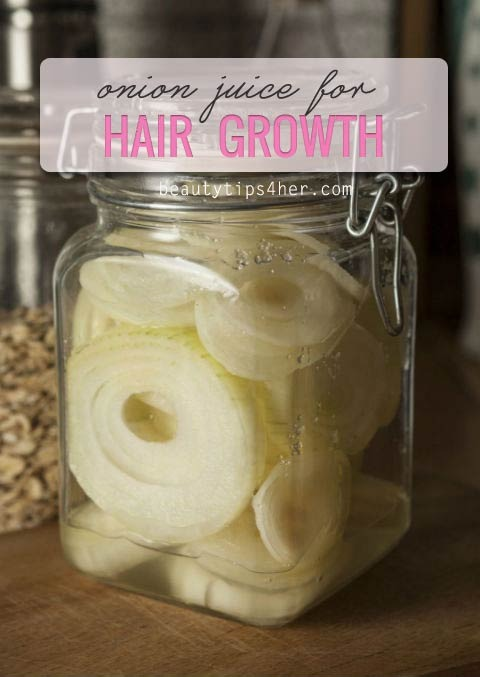 ?Onion Juice For Hair Growth? - Musely