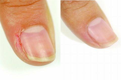 You Put Your Top Coat On Torn Skin 1 2 Days It Will