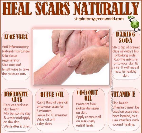 Heal Scars Naturally by Samina Khan - Musely
