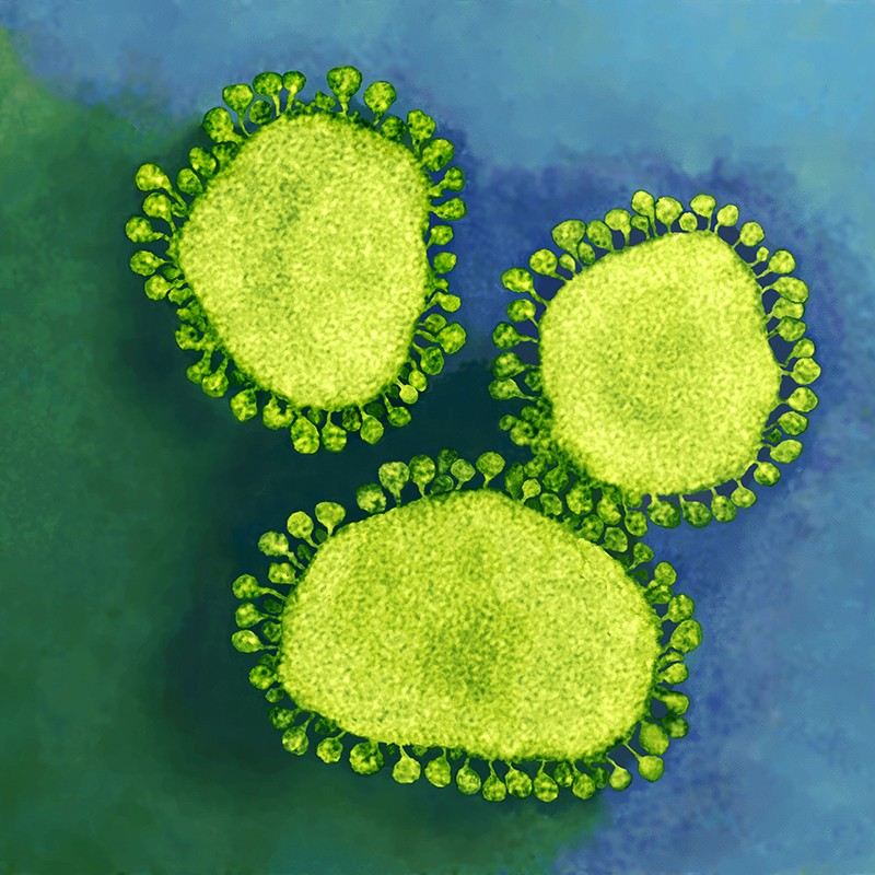 China coronavirus: labs worldwide scramble to analyse live samples