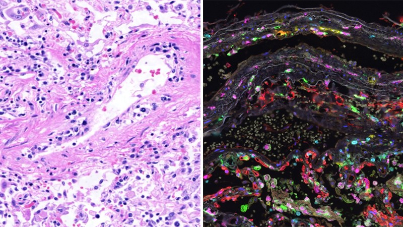 Two images: left, purple and pink dots and swirls on a white background; right, coloured dots on a black background.