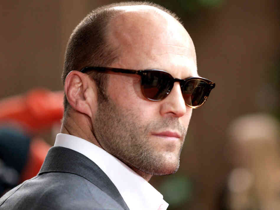 Confronting Your Crown Male Pattern Baldness  NPR