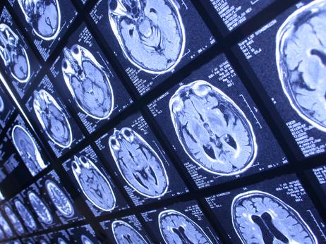 Your brain will appreciate even a modest improvement in stroke risk factors.