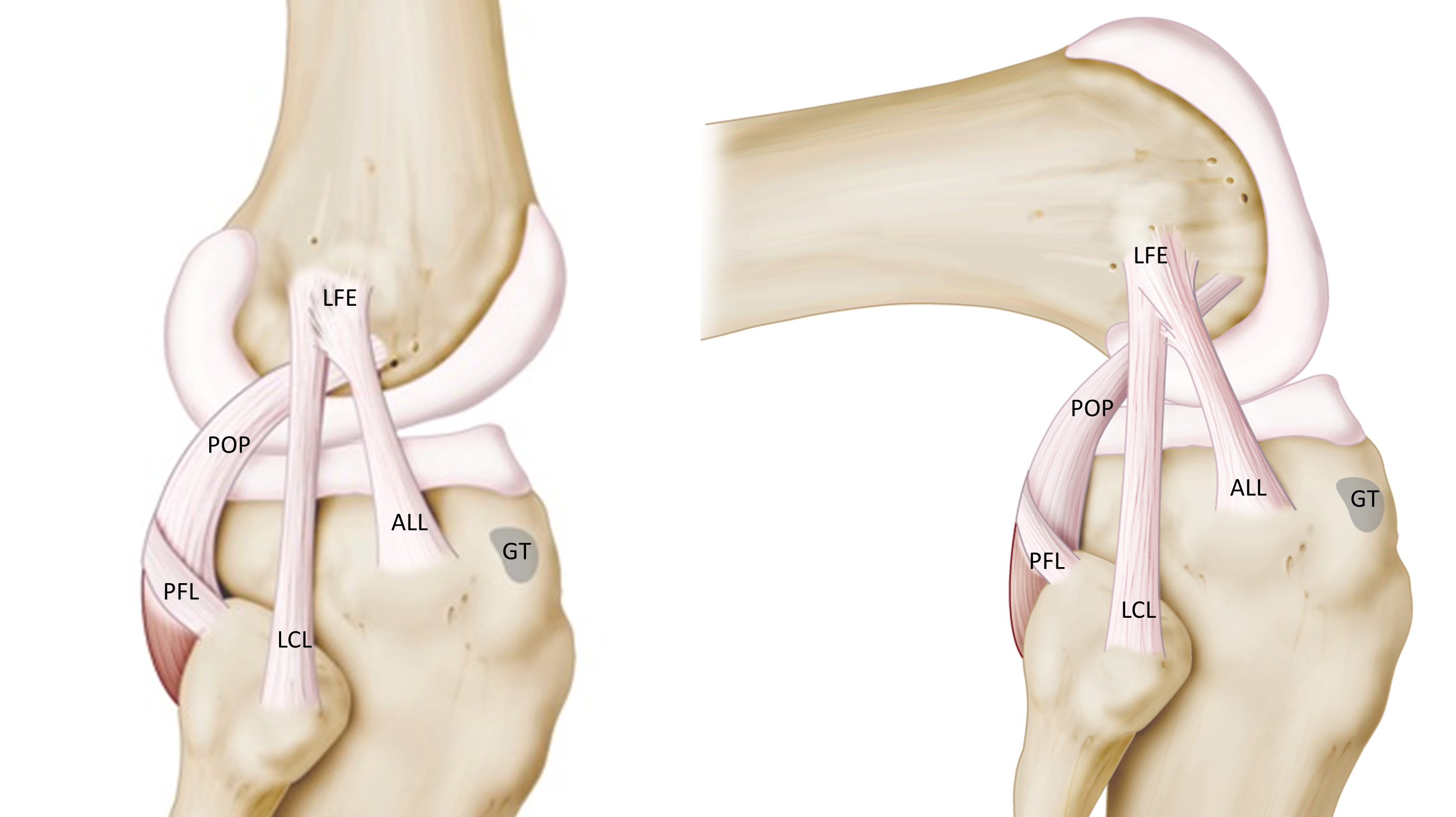 hight resolution of surgeons discover quirky knee ligament all over again