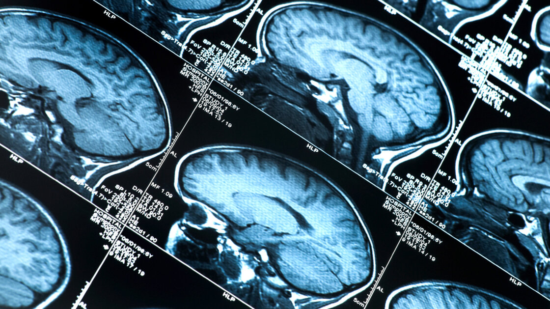 """Doctors may eventually be able to diagnose """"preclinical"""" Alzheimer's in patients who have abnormal brain scans but who aren't yet showing behavioral symptoms of the disease."""