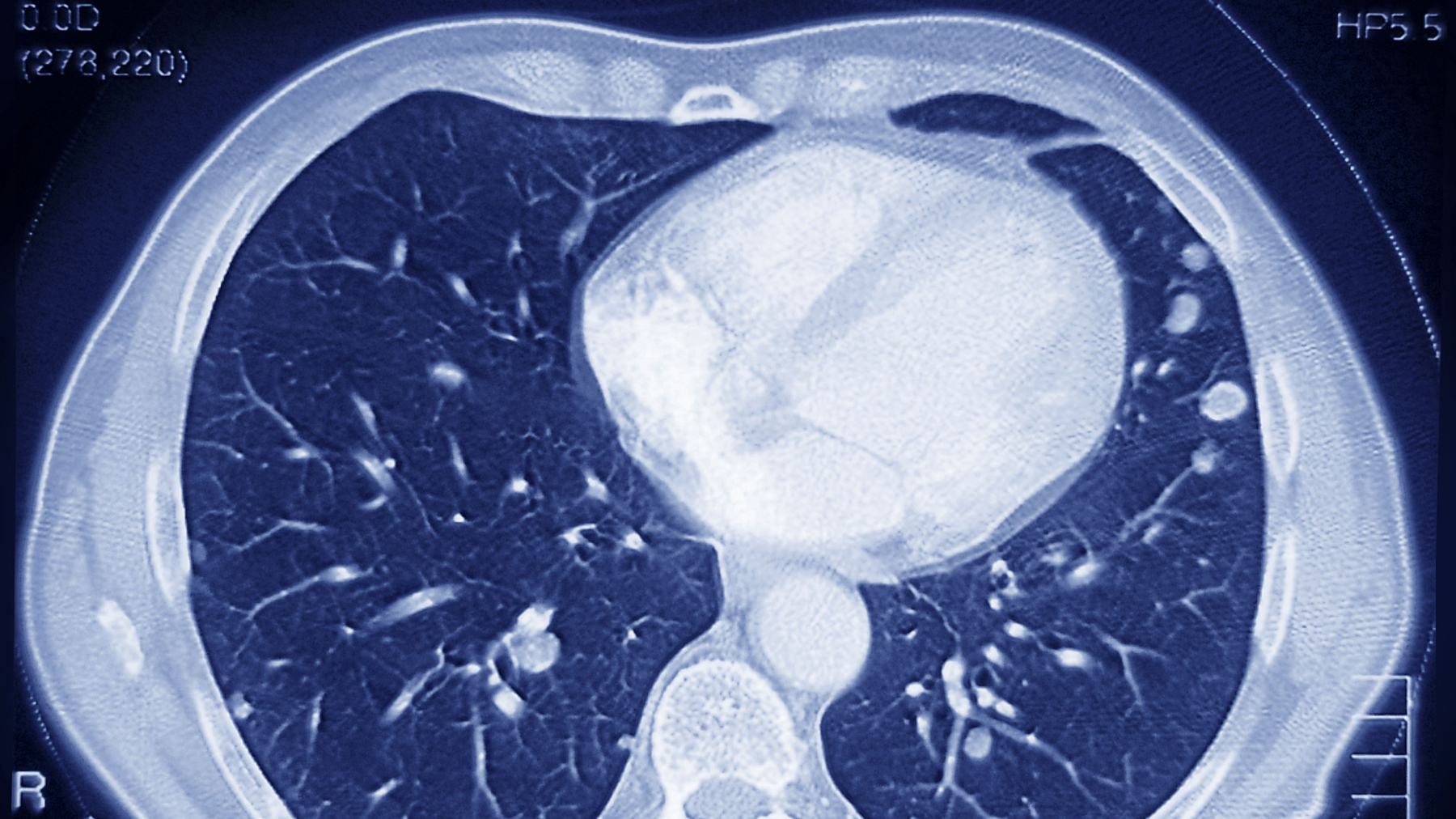 Medicare Poised To Cover CT Scans To Screen For Lung