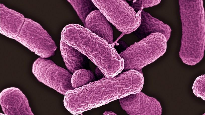 https://i0.wp.com/media.npr.org/assets/img/2016/05/26/e-coli_wide-fef9db34381b7ff035a2ca3212d3fc317487d0e0.jpg?resize=814%2C457&ssl=1