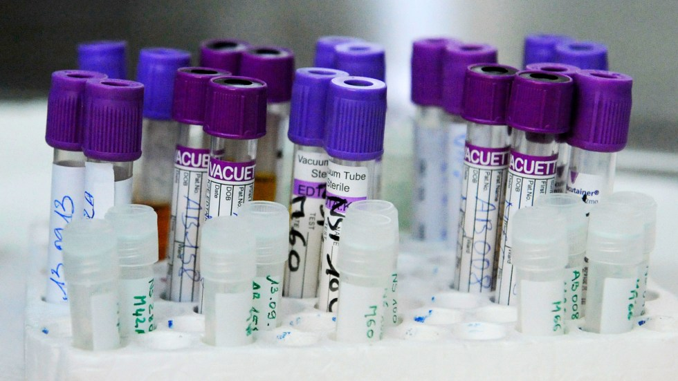 Blood samples of people living with HIV in a laboratory at the AIDS Research Center in Abidjan, Ivory Coast.