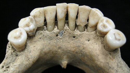 A Blue Clue In Medieval Teeth May Bespeak A Woman's Artistry Circa A.D. 1000