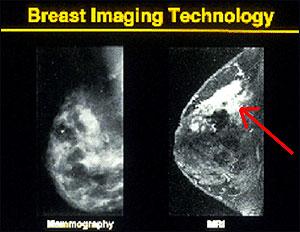 NPR: Breast Imaging Comparison