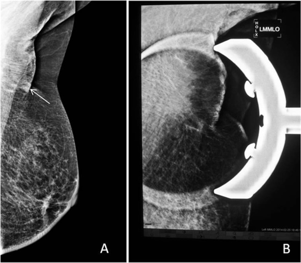 Breast Positioning during Mammography