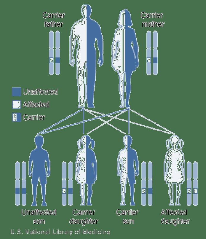 Achondroplasia Chromosome Diagrams