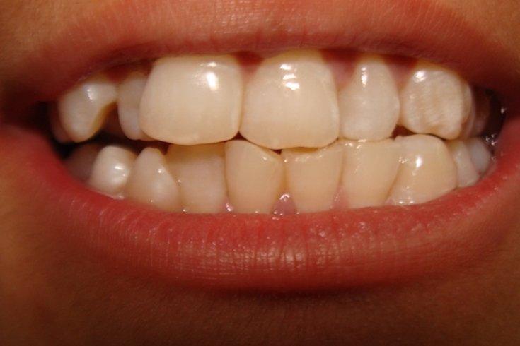 over 500 hidden teeth