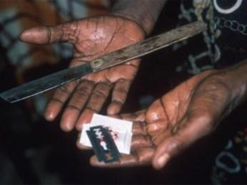 genital mutilation