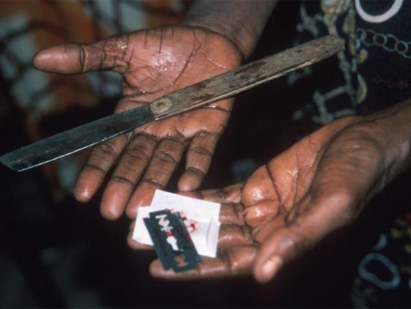 Genital mutilation: Photo used to illustrate the story