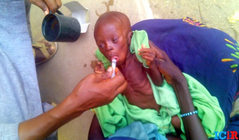 FILE PHOTO: A malnourished child given improvised nutrition