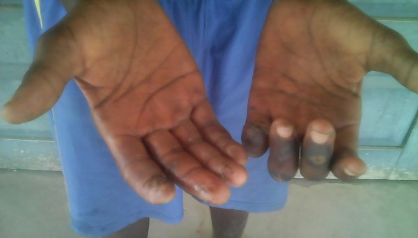 The leprosy infested fingers of Master Peter