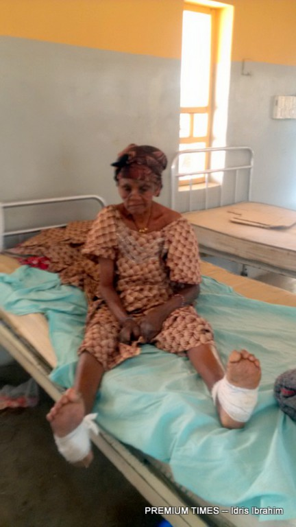 One of the patients at the Leprosy centre