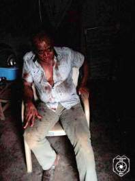 APC leaders attacked by suspected PDP thugs