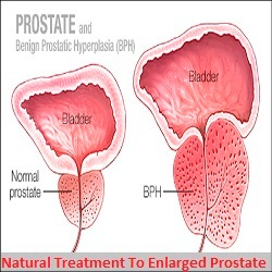 prostate Classified advert