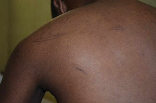 The scars of prison torture... after three weeks.