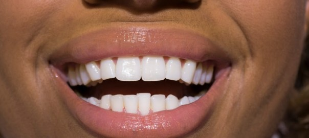 Someone's teeth used to illustrate the brushing story (Photo Credit: Tozali Online7)