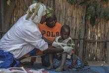 Health worker Grace Felix uses a Mid-Upper Arm Circumference band (MUAC) to examine Mojes Morris, 3, as he sits on his mother's lap in a village near Yola[PHOTO CREDIT: UNICEF/UNI279424/Modola]