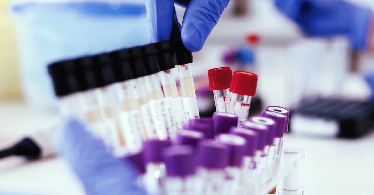 FDA Issues Emergency Authorization of Hydroxychloroquine Amid Coronavirus Pandemic