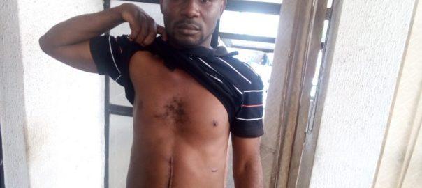 Man shot by customs officers in Ibadan