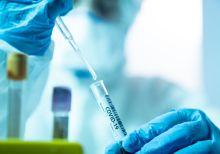 Covid-19 Laboratory test [PHOTO CREDIT: The Scientist Magazine]