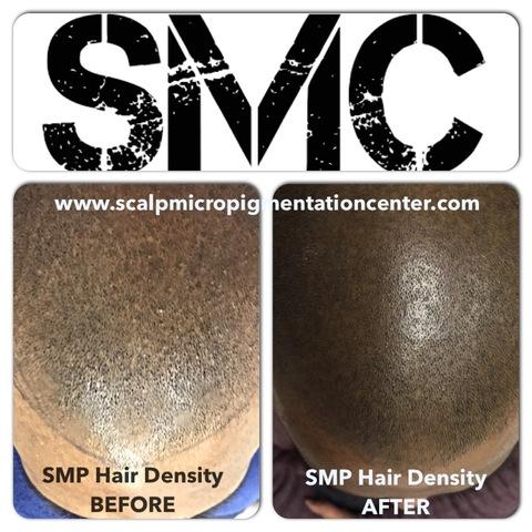 the scalp micropigmentation center explains the difference between scalp micropigmentation smp