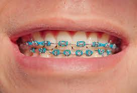 How To Know If You Need Braces? - ProProfs Quiz