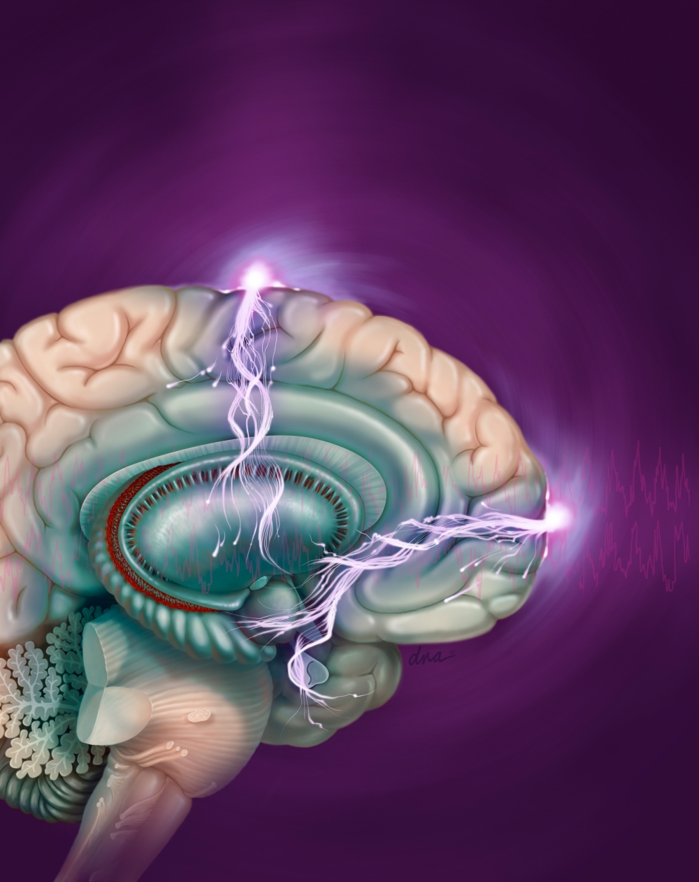 Schizophrenia Treatment Can Benefit From Electroconvulsive