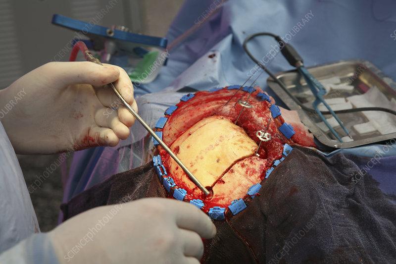 Meningioma surgery - Stock Image - C004/0792 - Science ...