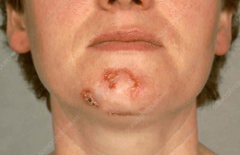 Basal Cell Carcinoma - Stock Image - C036/5617 - Science ...