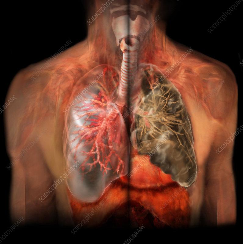 healthy lung vs smoker