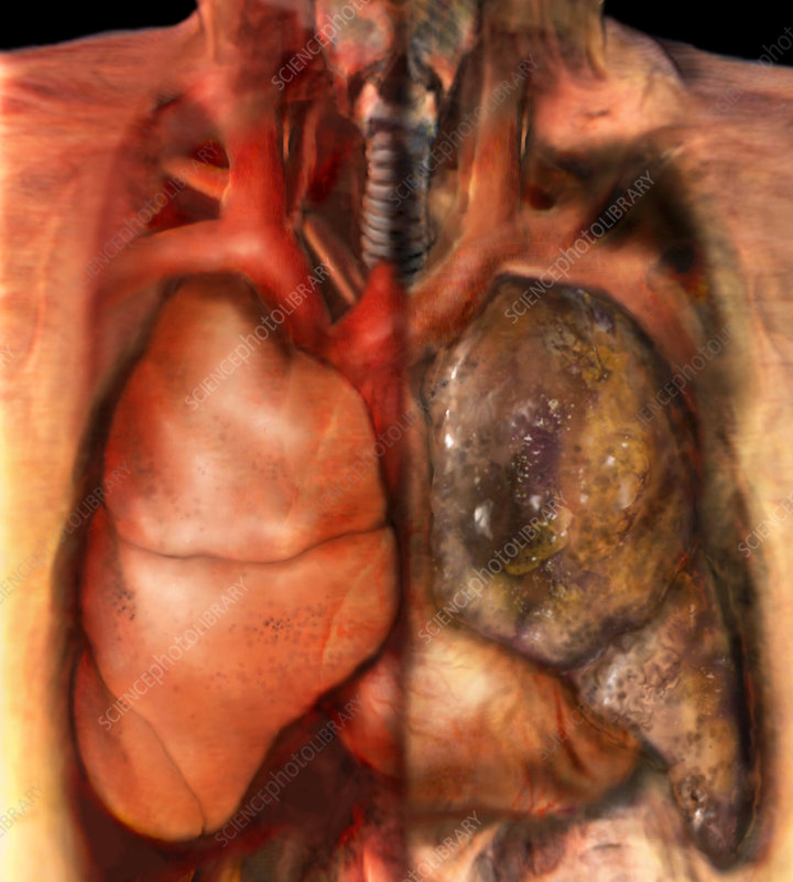 healthy lung vs cancerous